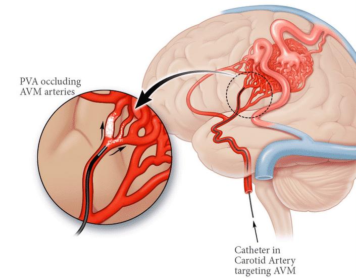 Pembuluh Darah Otak Pecah, Salah Satu Penyakit Yang Mematikan